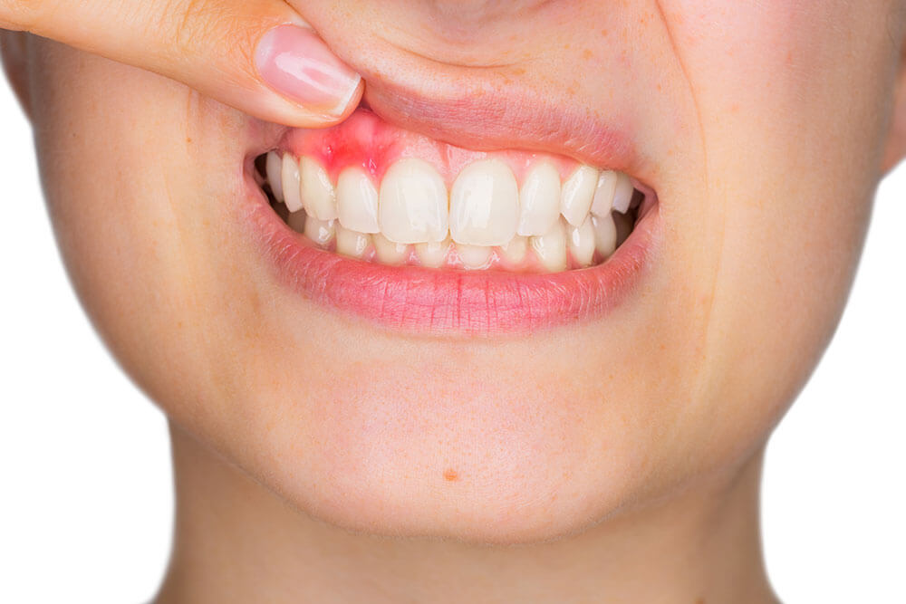 A patient smiling and holding up herlip to show redness in her gums caused by gun disease